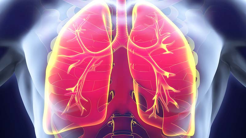 Lungenkrebs – Nicht nur Raucher sind gefährdet