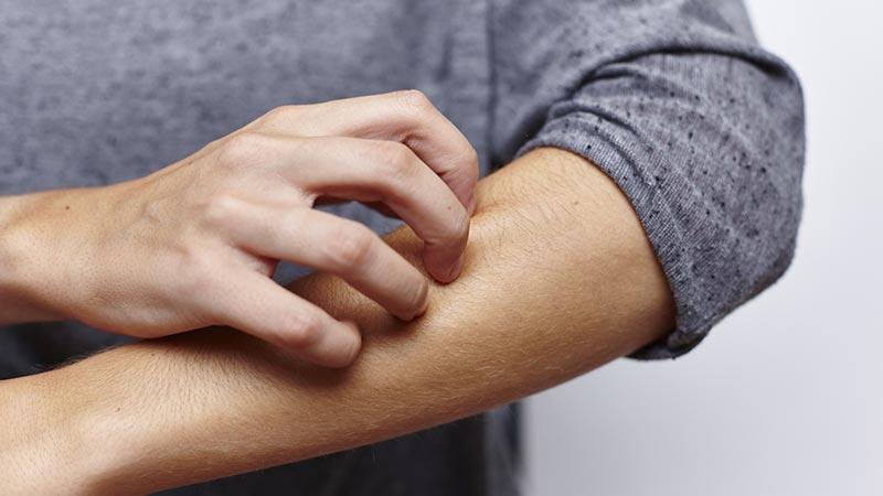 Nesselsucht – Die 7 wichtigsten Fakten auf einen Blick