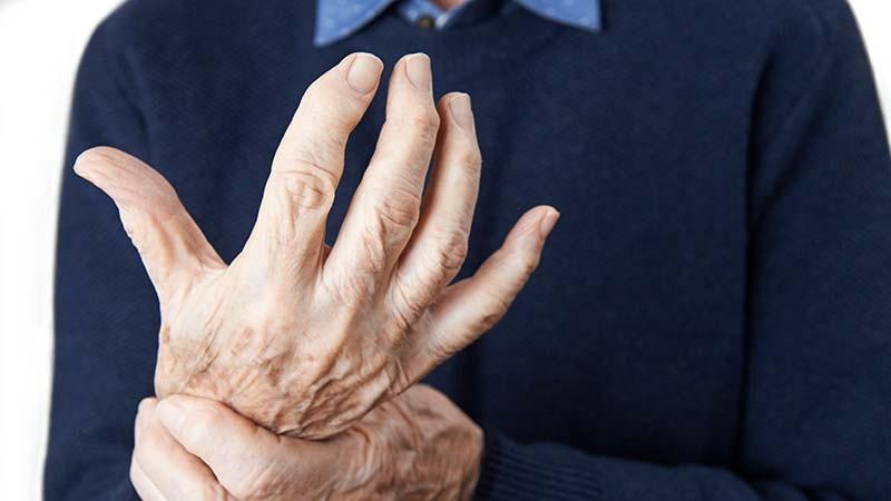 Chronische Polyarthritis – Was das bedeutet und was dagegen hilft