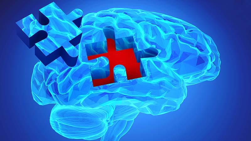 Alzheimer vorbeugen – 6 Tipps, um dem Vergessen entgegenzuwirken