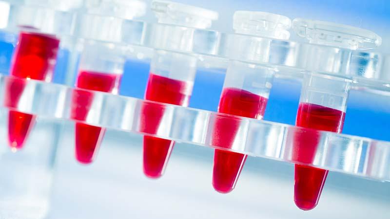 Hämatologie – Von Blutarmut bis Blutkrebs